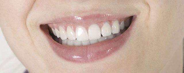 Zahnzwischenräume richtig gepflegt