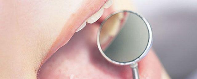 Quando i denti sono sensibili al caldo e al freddo…